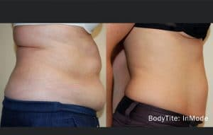 bodytite-before-and-after-stomach