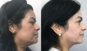 FaceTite-Dr.-Perryman-before-and-after-rosie1.jpg