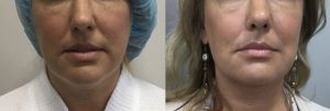 facetite-Before-and-After-1-week3.jpg